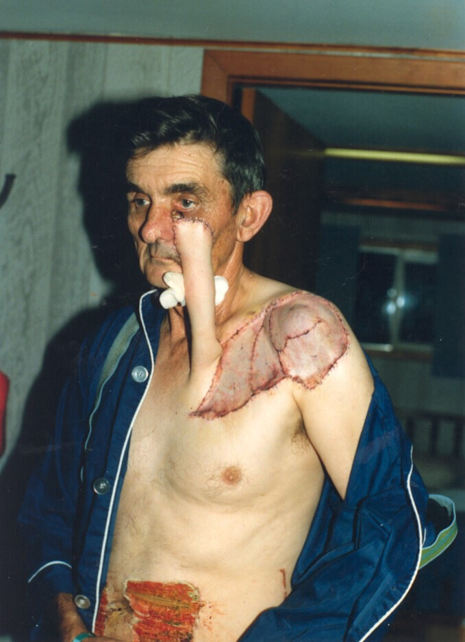Post skin cancer surgery